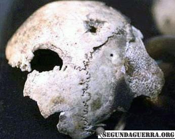 cranio-2